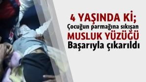 Tarsus' ta Çocuğun Parmağına Sıkışan Musluk Yüzüğü Kesilerek Çıkarıldı